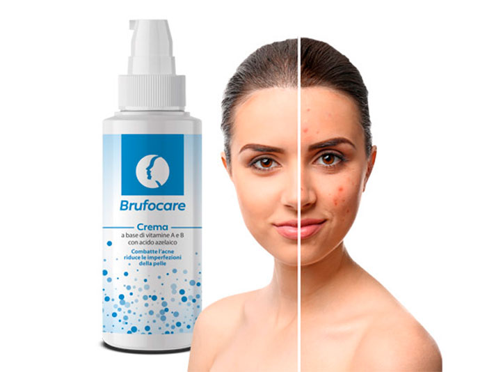 brufocare crema per acne